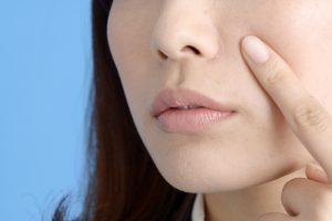ニキビはお肌の病気と内側からのSOS